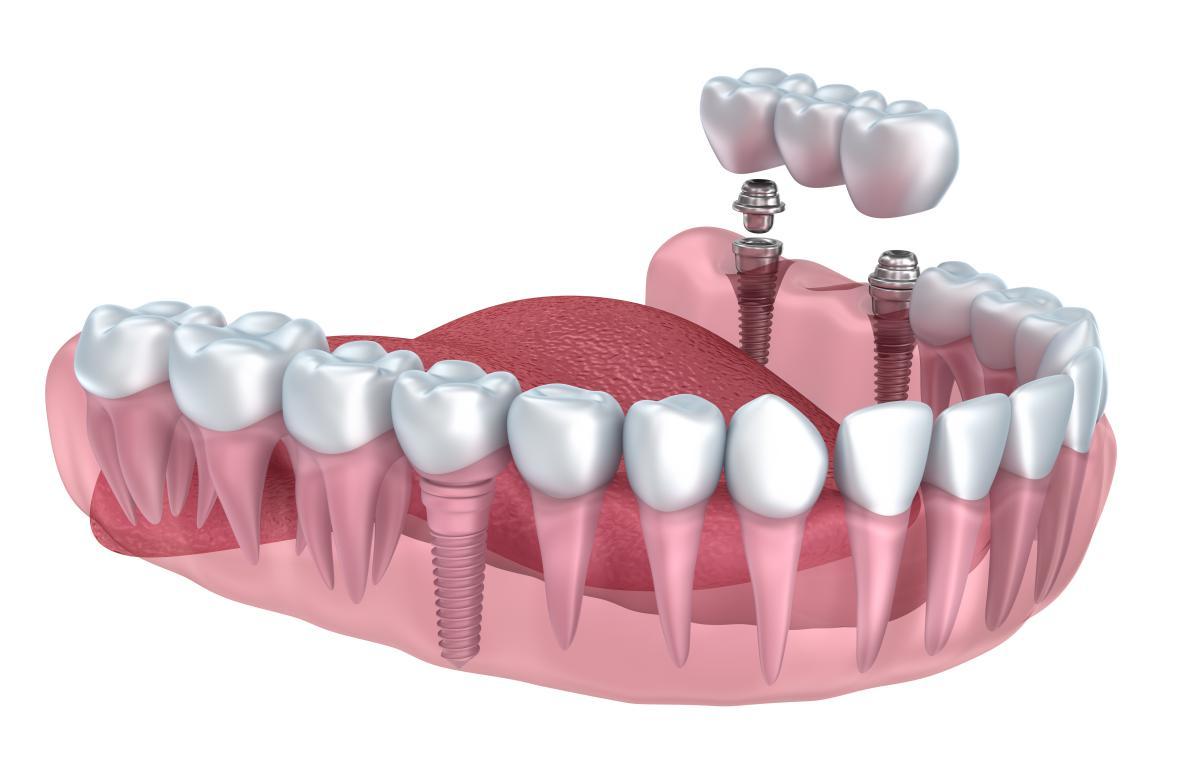 Implant dentaire : un implant en titane utile ?
